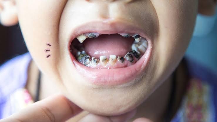 kesehatan gigi perlu dijaga